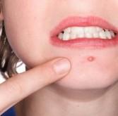 Eliminar espinhas do rosto